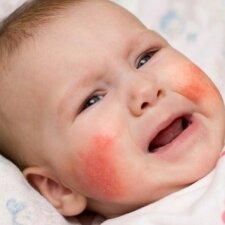 3 dažniausios odos ligos, kai išberia: kaip jas atpažinti ir padėti vaikui