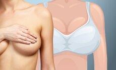 """Nauja mada Japonijoje - """"Cindarella"""" krūtų didinimas vienai dienai"""