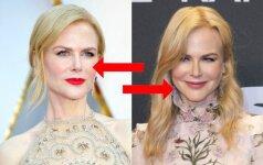 Nicole Kidman nuotraukas skiria tik viena savaitė - ar pastebi pokyčius?