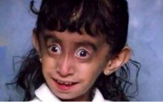 Vaikystėje visi tyčiojosi iš šios mergaitės veido. Tačiau pažvelk, kuo ji užaugo