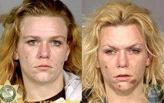 Sukrečiantis vaizdas: kaip narkotikai keičia žmogaus išvaizdą