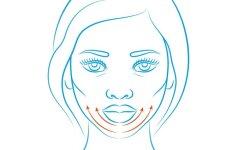 Ko nežinote apie senėjimą ir ką daryti, kad veidas nesudribtų