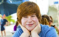 Viena dažniausių paauglių bėdų, kuri gadina ne tik nuotaiką, bet ir gyvenimą