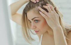 Efektyvi procedūra, padedanti nuo plaukų slinkimo