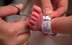 Jovitos gimdymas baigėsi tragiškai: ar buvo galima to išvengti?