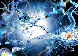 Išsėtinė sklerozė vis dažniau užklumpa jaunus žmones: ką reikia žinoti