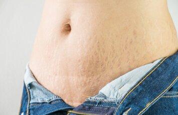 Problema, dėl kurios moterys gėdijasi kūno: kaip efektyviai pašalinti strijas