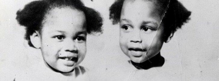 Tragiškas dvynių Gibbons likimas - nepaaiškinamas mergaičių ryšys ir mirtis, išlaisvinusi iš kančių