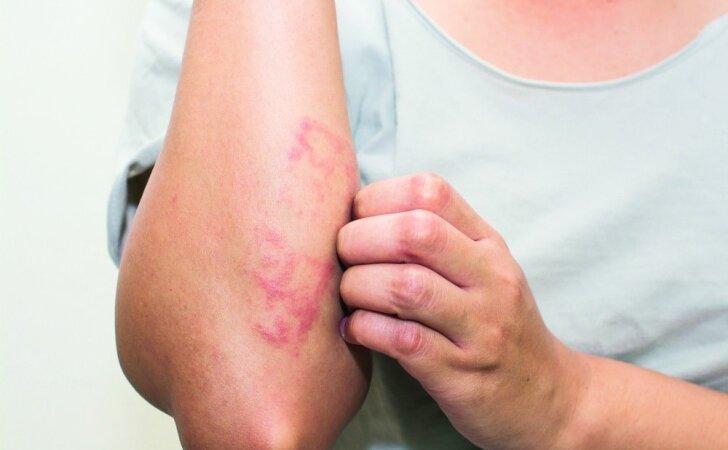 Kaip numalšinti odos niežėjimą?