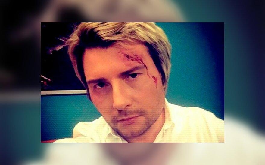 Басков разбил голову на свадьбе Крутой