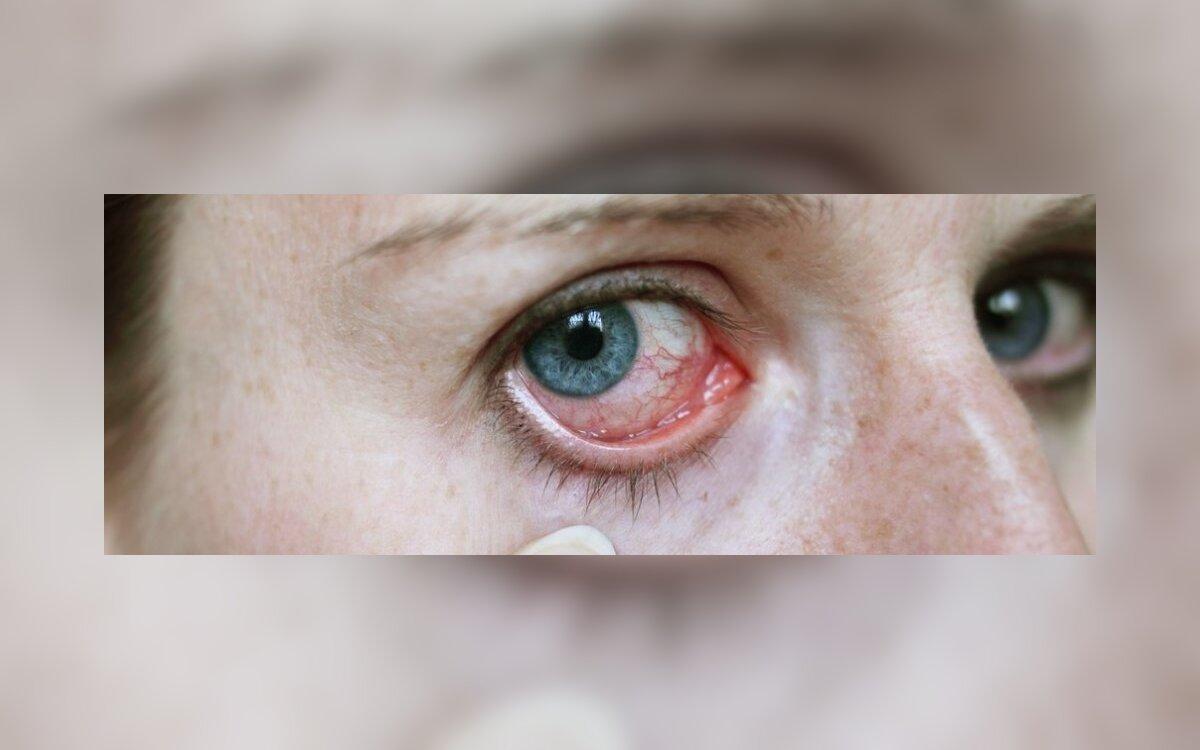 1-ojo laipsnio akies hipertenzija
