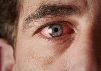 hipertenzija nukreiptos akys)