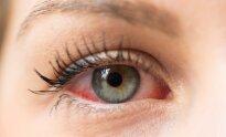 kraujagyslės hipertenzijos akyse 2 laipsnio hipertenzija, 2 laipsnio rizika