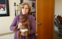 Su keturiomis kojomis gimusiai mergaitei atlikta operacija