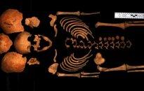 Vaiko, prieš kurį buvo smurtaujama, skeletas (J. Kozakaitės nuotr.)