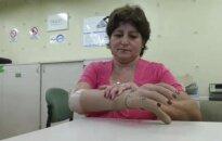 Pigesnės bioninės rankos variantas suteiks galimybę naudotis protezais už prieinamą kainą