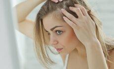 Ką plaukai pasako apie sveikatą: trūksta vitaminų ar sutriko skydliaukės veikla?