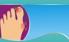 Iššokęs pėdos kauliukas