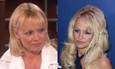 Pamela Anderson dabar (kairėje) ir vasario mėnesį
