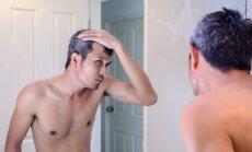 Žili plaukai