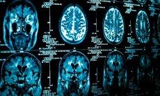 Smegenų tomografija