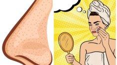 Išsiplėtusios odos poros. Šios naminės kaukės išnaikins jas akimirksniu!