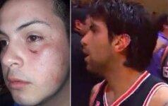 Po žaidėjo agresijos protrūkio – sudaužytas sirgaliaus veidas