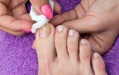 Liaudiški nagų grybelio gydymo metodai, kurie padės pasveikti
