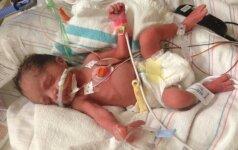 DRAMA: pagimdžiusi sveiką ketvertuką, netikėtai miršta jų mama (FOTO)