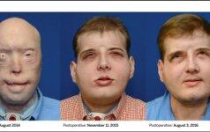 Metai po veido persodinimo operacijos: pacientas jaučiasi puikiai