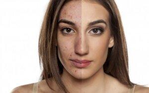 Svarbiausi žingsniai prižiūrint aknės varginamą odą