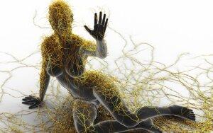Ar įmanoma sustabdyti išsėtinę sklerozę, kuri kėsinasi į jaunus žmones?