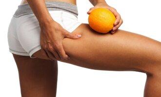 Norint suprasti celiulito esmę, būtina daugiau žinoti apie riebalus