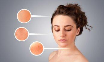 Kaip tinkamai naikinti spuogus skirtingose veido ir kūno vietose?