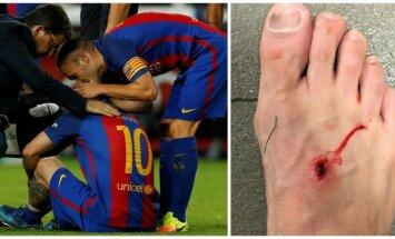Lionelio Messi trauma, sužeista Filipe Luiso pėda (Reuters-Scanpix, Instagram nuotr.)