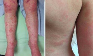 Sunkių alerginių reakcijų pavyzdžiai