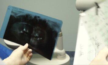 """""""Mano sveikata"""": išsamiai apie dantų implantaciją"""