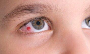Kraujosruva akyje