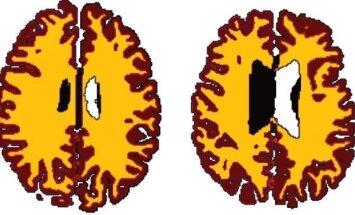 Smegenų pokyčiai
