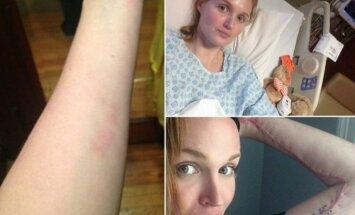Mergina užsikrėtė audinius ėdančia bakterija