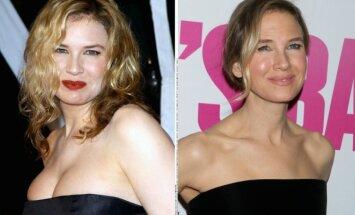 Renee Zellweger anksčiau ir dabar