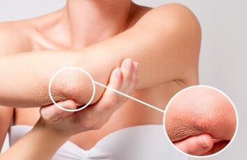 Kaip greitai atsikratyti odos perštėjimo ir sausumo