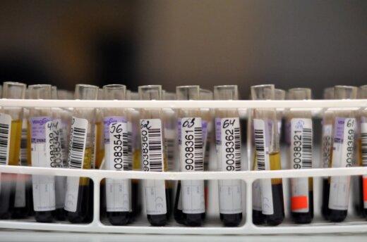 Kraujas laboratorijoje