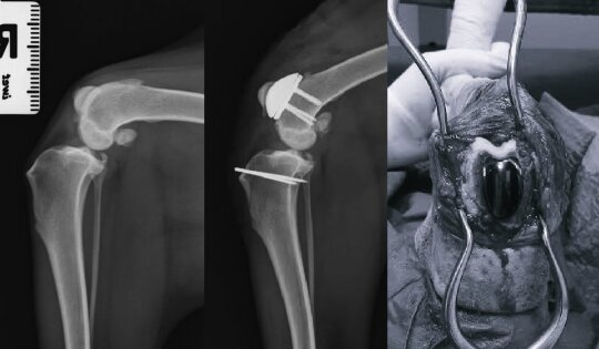 Osteoartrito medikamentinis gydymas