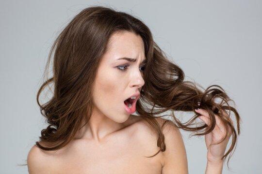Pradėjo slinkti plaukai? Priežastys gali būti kur kas paprastesnės nei manote
