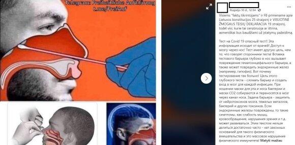 Миф: тестирование на коронавирус повреждает мозг