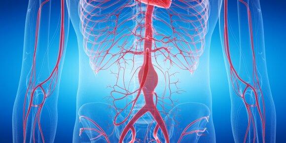Pilvo aortos aneurizma