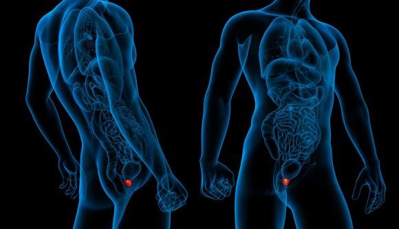 Prostatos vėžys