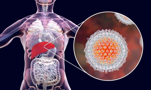 Hepatitas C