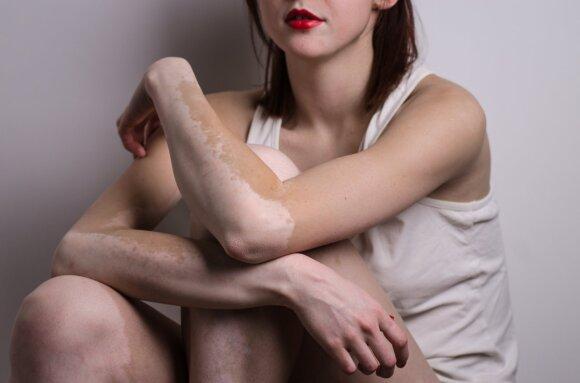 Vitiligo liga